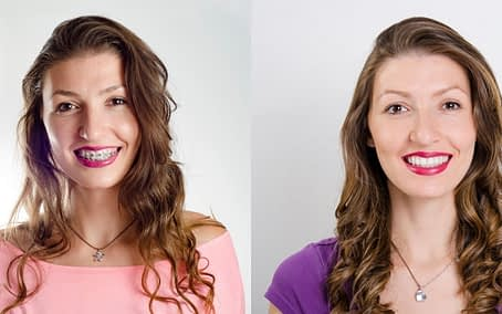 braces-before-and-after-Bradford-Family-Dentistry