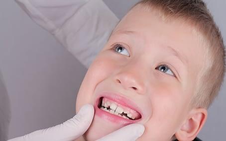 when-should-kids-get-braces