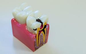 Dental Abscess Infection - Bradford Family Dentist