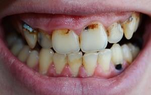 Vaping Gum Disease - Bradford Family Dentist