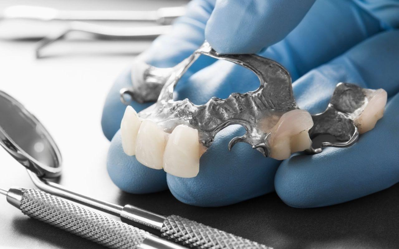 dental-bridge-Bradford-Dentist