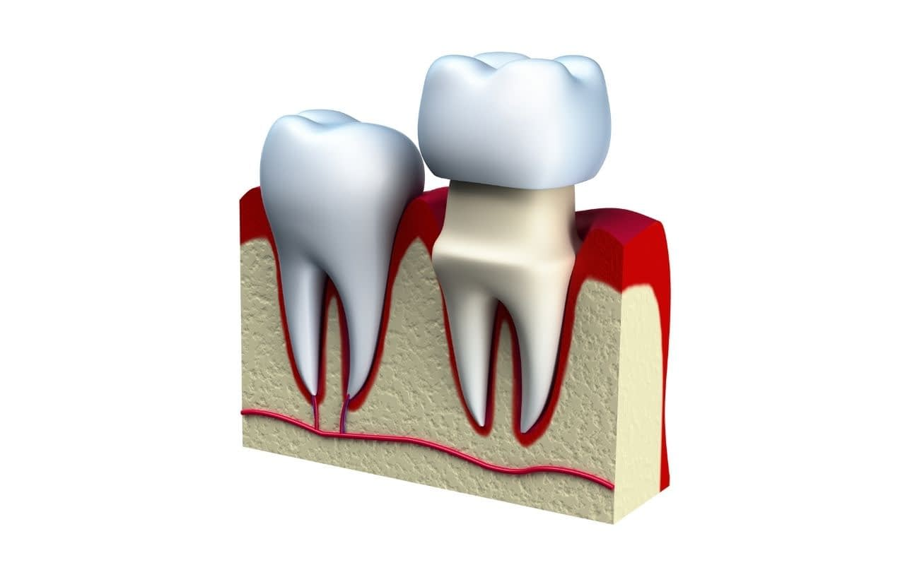 dental-crown-dental-implants-101