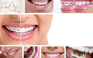 Bradford-Orthodontics-with-PayBright-Bradford-Family-Dental