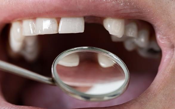 reasons-you-may-need-dental-implants