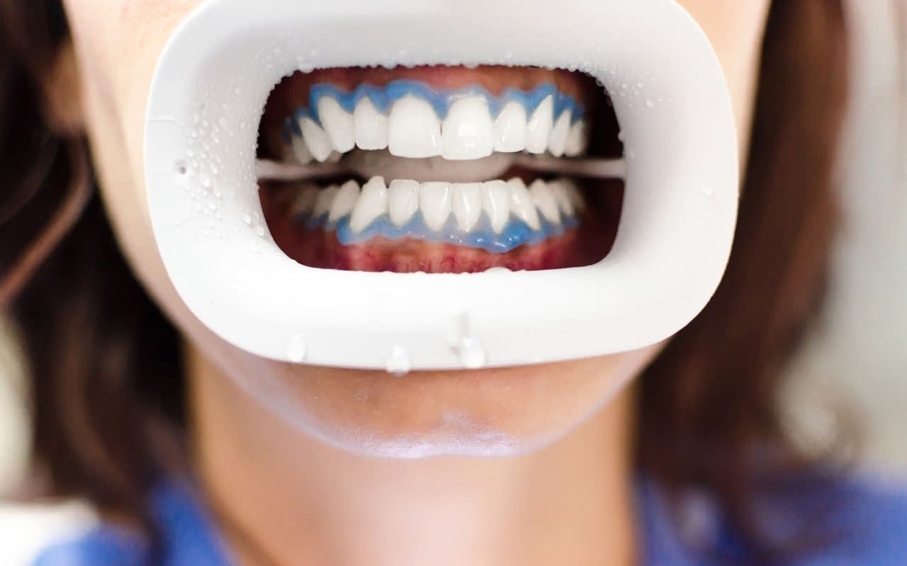neglecting-to-protect-lips-and-gums-can-cause-discomfort-and-sensitivity-Bradford-Dentist