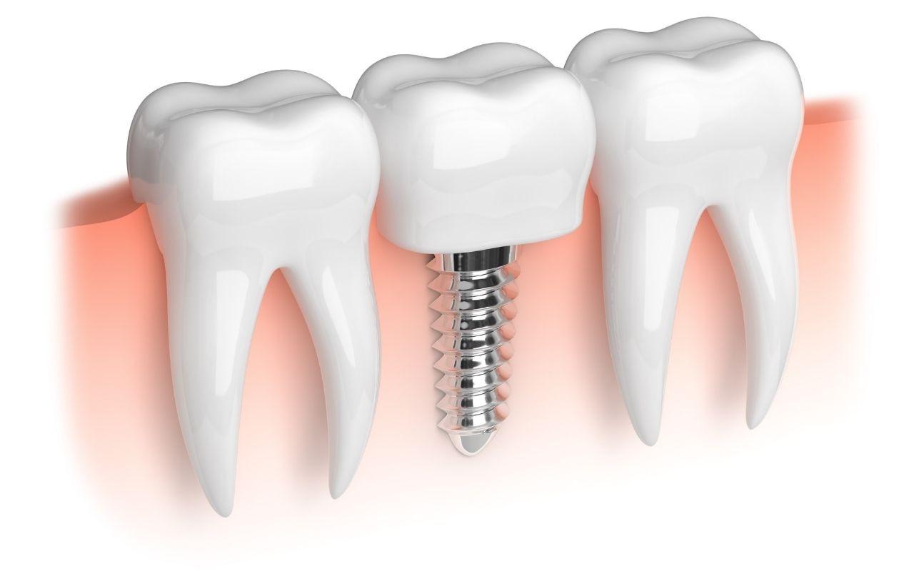 dental-implant-Bradford-Dentist