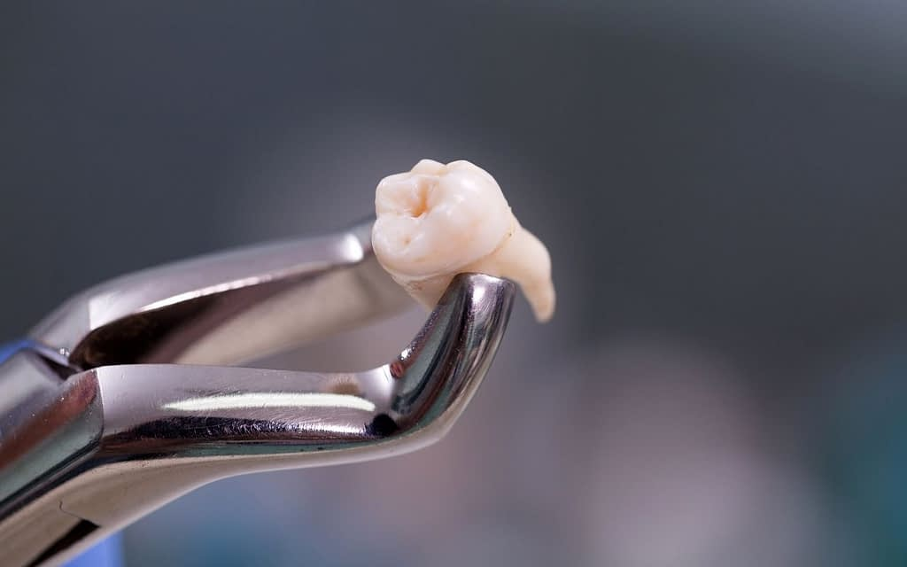 common-causes-of-tooth-extraction-Bradford-Family-Dentistry