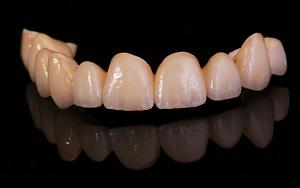 crowns-veneers-diy-teeth-whitening-Bradford-Dentist
