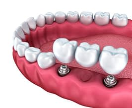 Bradford Dental Implants Bridge Diagram