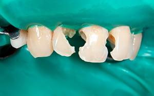Broken Teeth - 7 Reasons to Fix Crooked Teeth - Bradford Family Dentistry