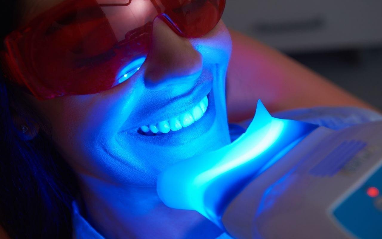 comfortable-teeth-whitening-modern-dentistry