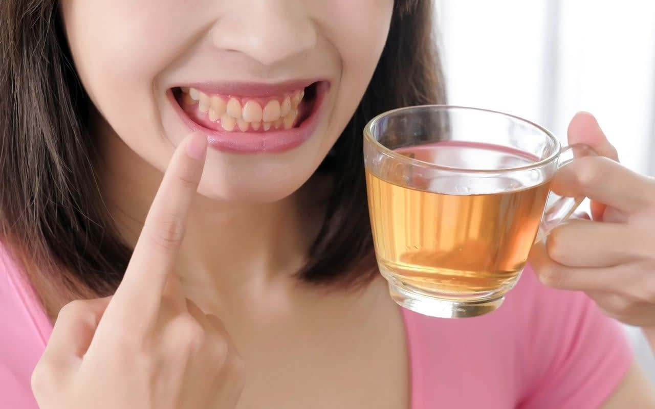 teeth-can-stain-over-time-Zoom-professional-teeth-whitening-Bradford-Dentist