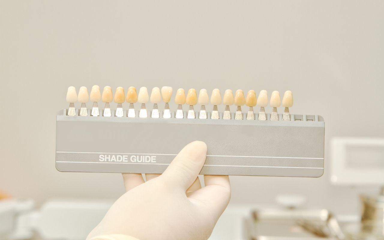 teeth-whitening-guide-foods-that-whiten-teeth-Bradford-Dentist
