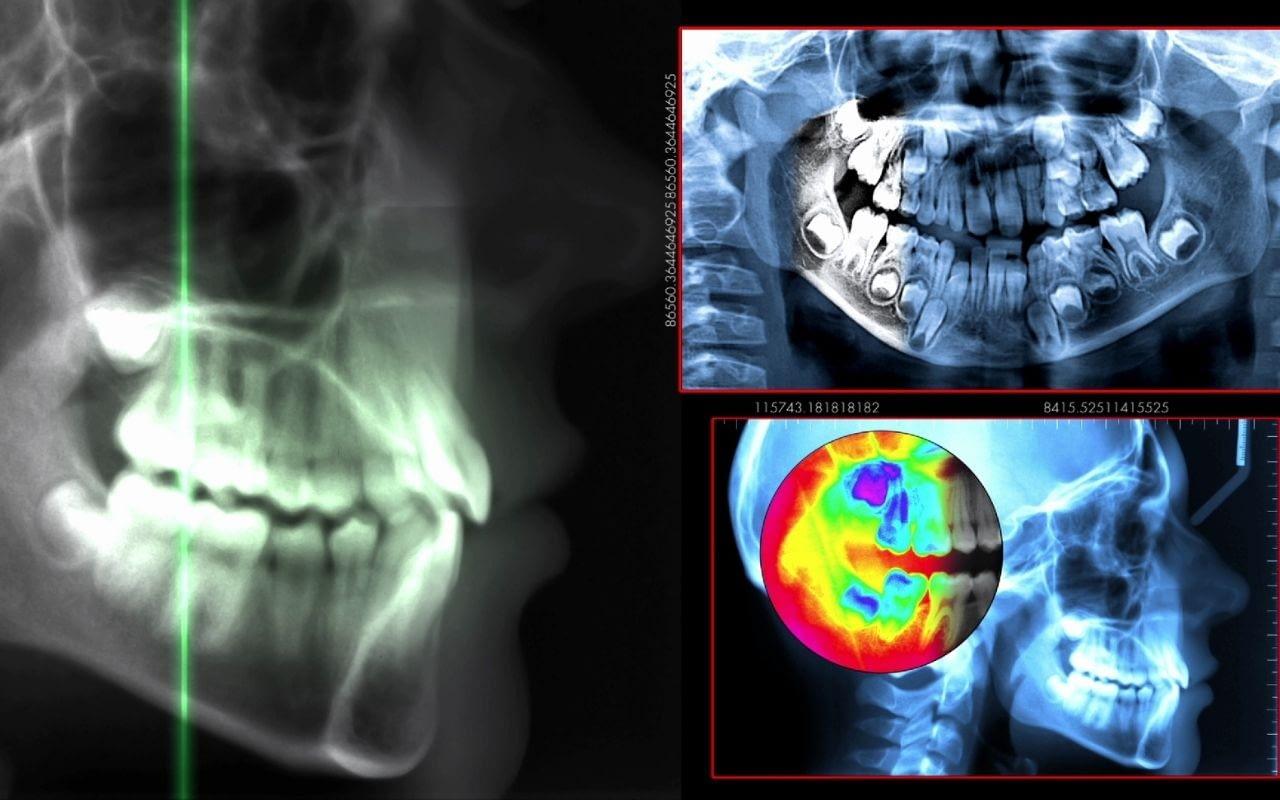 improved-diagnostics-in-modern-dentistry-Bradford-Family-Dentistry