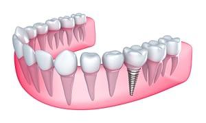 Bradford Dental Implants How it works