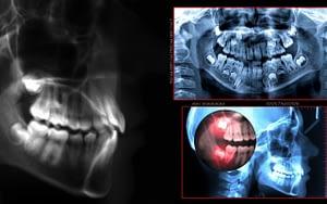 Digital-Radiography-Latest-Technology-in-Dental-Care-Bradford-Dentist