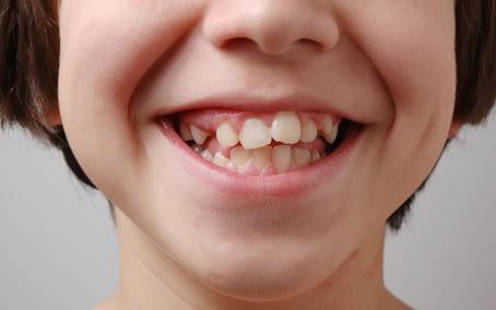 why-get-braces-gapped-crooked-teeth