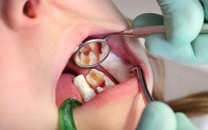 Cavities Caused by Bacteria - Cavity Treatment - Bradford Family Dentistry
