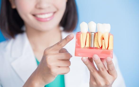 dental-implants-101