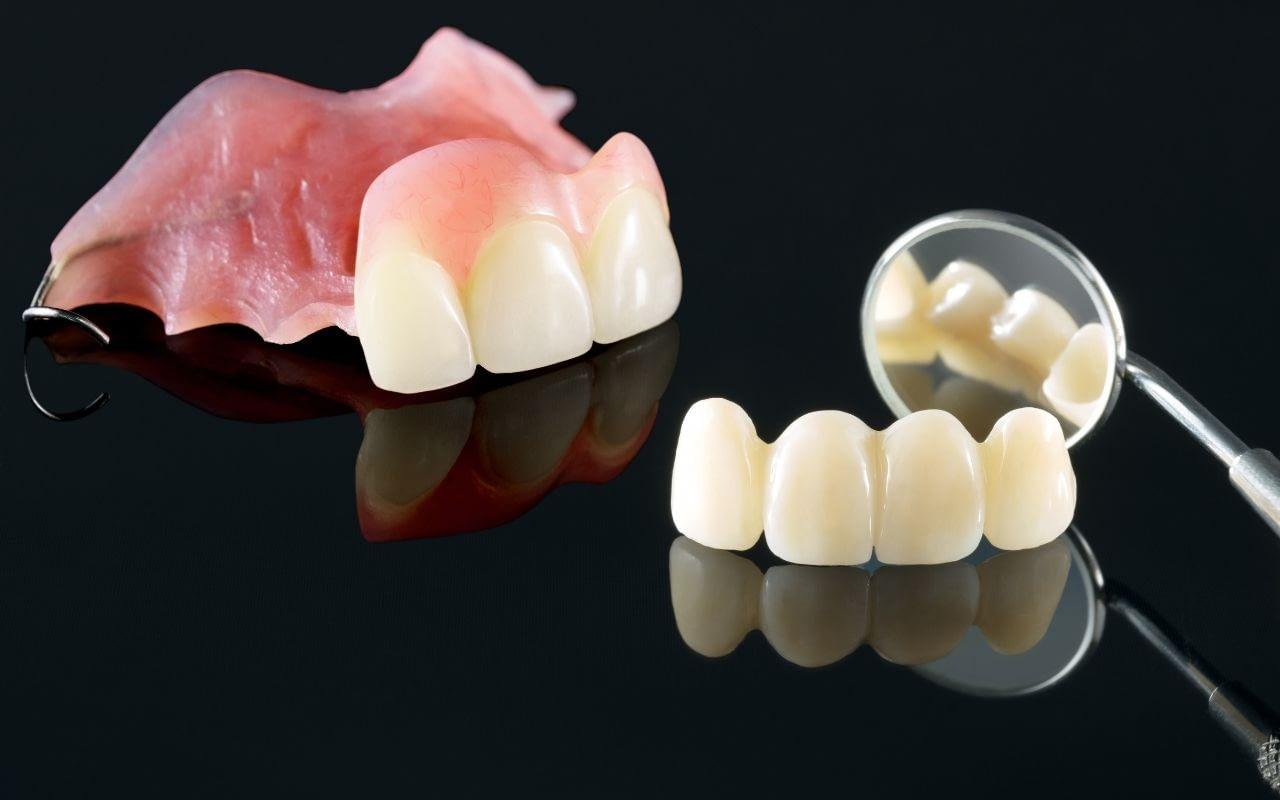 temporary-dentures