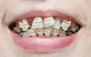 Premature Tooth Wear - 7 Reasons to Fix Crooked Teeth - Bradford Dentist